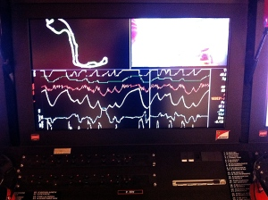 Telemetry data from a racing car. The contour of the racing track is shown in the upper left corner and various data channels are displayed below.